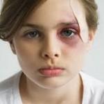 Modrice kod dece lečenje