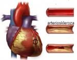 Arterioskleroza prirodno lečenje