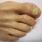 Gljivične infekcije noktiju lečenje biljem