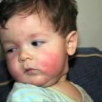Simptomi alergije ili preosetljivosti na pojedine namirnice