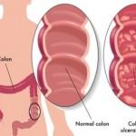 Ulcerozni kolitis