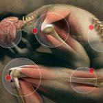 Bolovi u zglobovima: ublažite simptome osteoartritisa