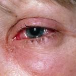 Crvenilo oka – krvave oči uzrok i lečenje