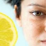 Kako ukloniti fleke sa lica sokom od limuna