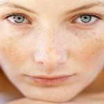 Prirodni lekovi za pege i fleke na licu i telu
