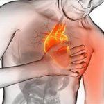 Oporavak posle infarkta miokarda