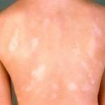 Beličaste fleke po koži
