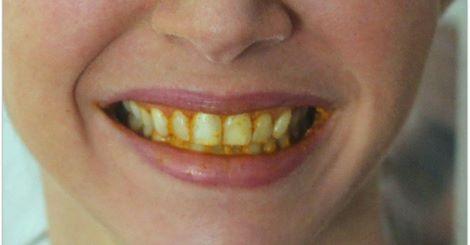 kurkuma za zube