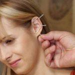 Akupunktura za mršavljenje