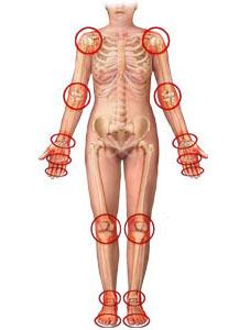 artritis vezbe lecenje