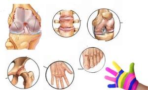 artritis vrste