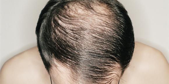 opadanje kose kod muskaraca