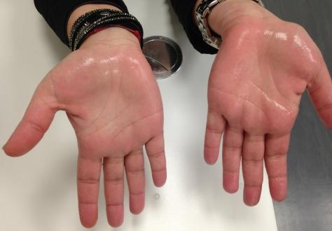 kako smanjti znojenje