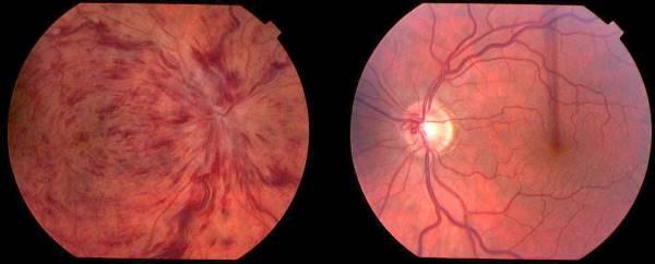 okluzija slog oka