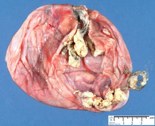 dermoidna cista jajnika