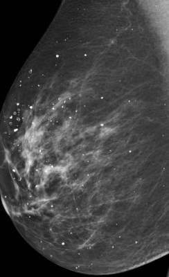 kalcifikacija dojke