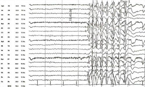 eeg mozga epilepsija