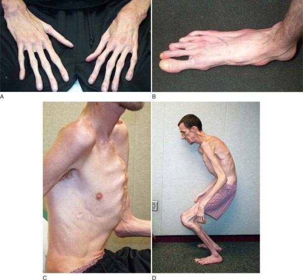 marfan sindrom simptomi